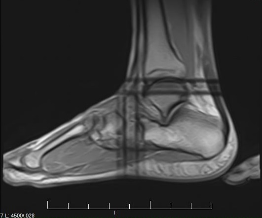 My MRI. This is what a completely ruptured Achilles looks like.